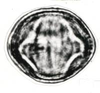 Alchornea costaricensis image